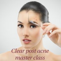 Master class: Clear post-acne