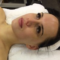 The microcrystalline dermabrasion by Anna Lotan.